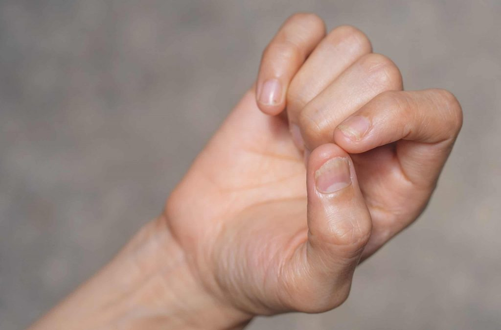 """""""nail psoriasis and how to treat it"""""""